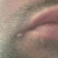 Image of a skin tag on the angle of the right mouth actually a wart