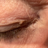 image of a skin tag on the right eyelid
