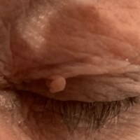 Image of a larger skin tag on the left eyelid that we removed at Thames Valley Surgical Services