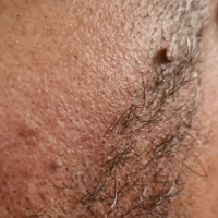 Image of 2 facial skin tags in the bearded area of a man