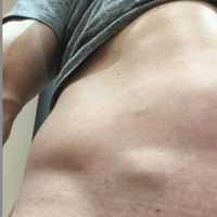 Image of a Lipoma on the right lower abdomen