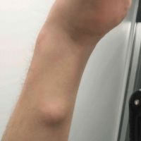 image of a lipoma on the forearm