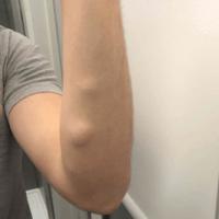 image of 2 lipomas on te left forearm