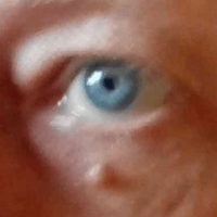 image of a skin tag under the right eye