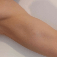 image of a Lipoma on the left upper arm